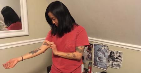 tattoo, removal, woman, unsure