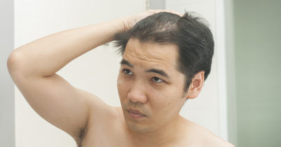 hair, grow, balding